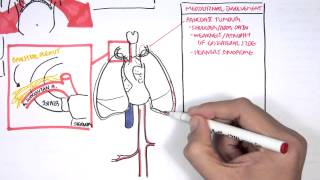 Download Lung Carcinoma (Lung cancer) Video