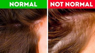 Download What Your Hair Can Tell You About Your Health Video