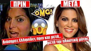 Download Διάσημες Ελληνίδες ΠΡΙΝ και ΜΕΤΑ την πλαστική μύτης! Video