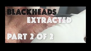 Download Extracting Blackheads on the Face and Nose - Part 2 of 2 Video