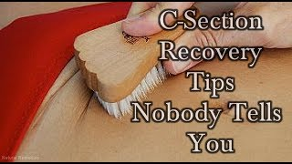 Download 5 C-Section Recovery Tips That Nobody Ever Tells You! #NaturalRemedies Video