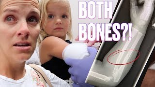 Download TODDLER BREAKS ARM IN TWO PLACES AT LEGOLAND ON VACATION | BOTH ARM BONES BROKEN Video