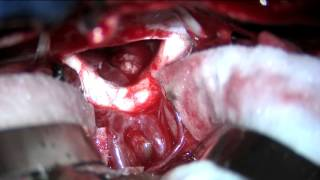 Download Subfrontal trans-lamina terminalis approach to a third ventricular craniopharyngioma Video