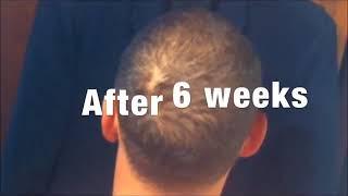 Download Kirkland Minoxidil 5% Extra Strength Men Supply Hair Regrowth Solution Video