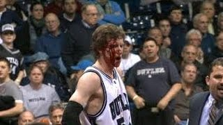 Download CRAZY BASKETBALL INJURIES(BLOODY) Video