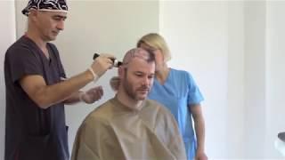 Download Meine HT Story Teil 2: Anreise und Haartransplantation bei Health Travels (Dr. Sahinoglu) Video