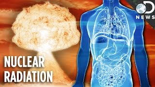 Download What Does Nuclear Fallout Do To Your Body? Video