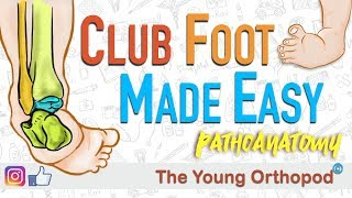 Download CLUB FOOT Pathoanatomy Made Easy - The Young Orthopod Video