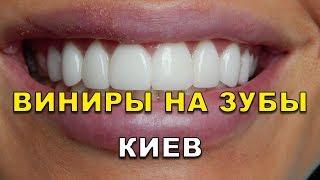 Download Виниры на зубы Киев (Украина) видео Video
