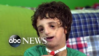 Download Boy living with Treacher Collins has 53 surgeries by age 11: 20/20 Part 2 Video