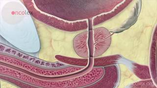 Download Prostate cancer: Essential facts Video