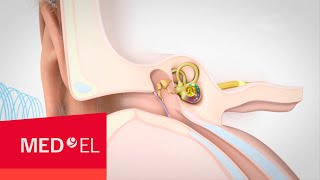 Download Video about Hearing and How it Works   MED-EL Video