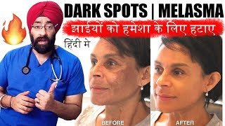 Download Permanently Cure DARK SPOTS, झाइयां, MELASMA, HYPERPIGMENTATION or BLACK MARKS (HINDI) Dr.Education Video