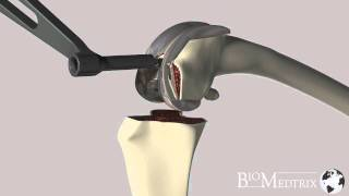 Download Canine Total Knee Replacement with the BioMedtrix Canine Knee Video