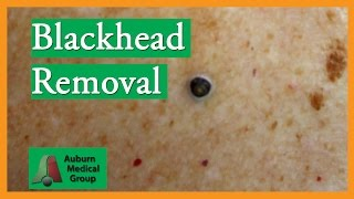 Download Large Blackhead Removal without Extractor Tool | Auburn Medical Group Video