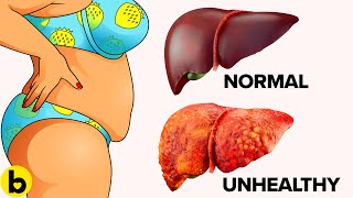Download 10 Warning Signs That Your Liver Is Full Of Toxins Video