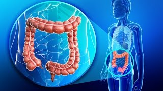 Download Colon Health and The Dangers of Colonoscopies Video