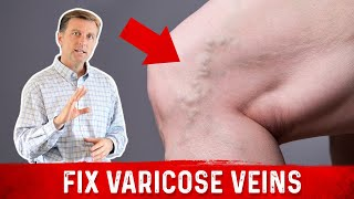 Download The Best Way to Deal with Varicose Veins! Video