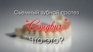 Download «СЭНДВИЧ» - съемный зубной протез нового поколения. Video