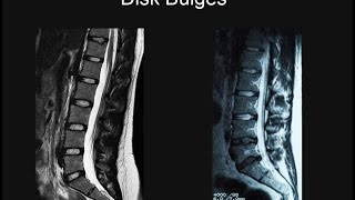 Download Back Pain - Part 1: Why MRI Scans Are Important. Video