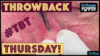 Download Reminiscing with Dr. Pimple Popper: TBT Video