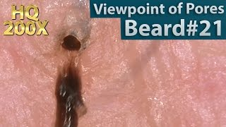 Download #21 Pull Out Beard(Viewpoint of Pores), Blackhead and Hair Root(Root Sheath) Close up Video