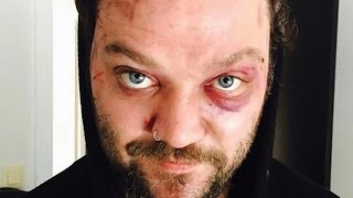 Download The Real Reason We Don't Hear From Bam Margera Anymore Video
