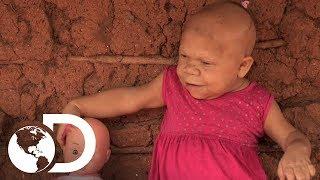 Download Mujer atrapada en la mente y tamaño de un bebé | Mi Cuerpo, Mi Desafío l Discovery Latinoamérica Video