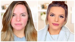 Download My Everyday Makeup Routine! | Casey Holmes Video