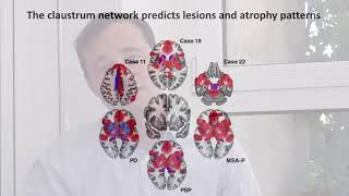 Download Localizing parkinsonism based on focal brain lesions Video