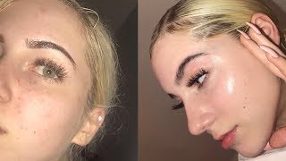 Download SKINCARE ROUTINE | HOW I CLEARED MY SKIN Video