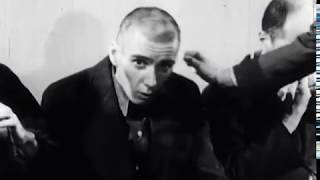 Download Catatonic Schizophrenia Video