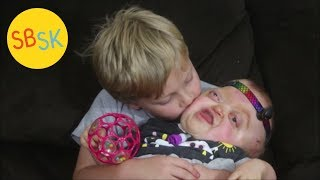 Download Emmy the Unicorn (Pfeiffer Syndrome) Video