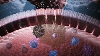 Download Immunology in the Gut Mucosa Video