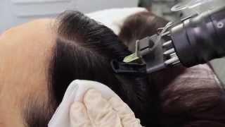Download Mesotherapie hilft gegen Haarausfall. meso-aesthetik-berlin.de Video