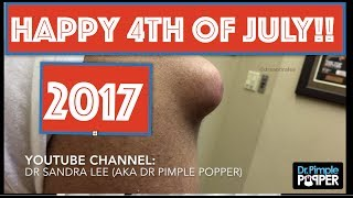Download DR PIMPLE POPPER POPS ARE EXTRA SPECIAL ON JULY 4TH!! 👉🏼🇺🇸👈🏼 Video