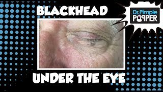 Download Now, THAT'S a BLACKHEAD!! Video