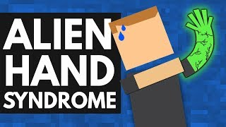 Download This Strange Syndrome Takes Control Of Your Body Video
