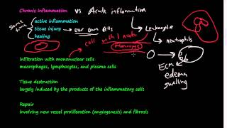 Download #28 - Chronic Inflammation - Introduction, Macrophages Video