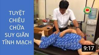 Download TUYỆT CHIÊU CHỮA SUY GIÃN TĨNH MẠCH, Danh y Đất Việt, Bác sĩ Dư Quang Châu 2017 Video