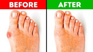 Download 5 Effective Ways to Get Rid of Bunions Video