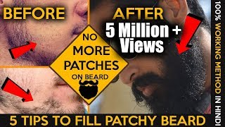 Download 2017 How to fill patchy beard | Homemade tips | Patchy beard fix in hindi | Fashionable Brat Rg Video