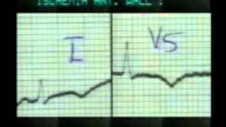 Download Learning ECG - T Inversion Video