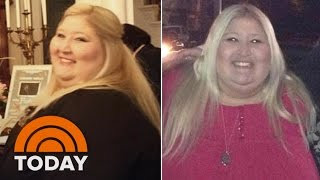 Download Woman Loses 350 Pounds After Getting Stuck In A Turnstile | TODAY Video