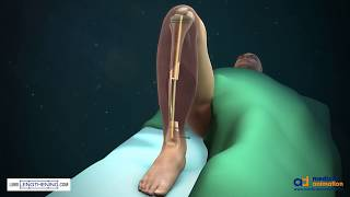 Download Tibial Bone Transport Over an Intramedullary Nail Using Cable and Pulleys Video