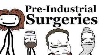 Download Pre-Industrial Surgeries Video