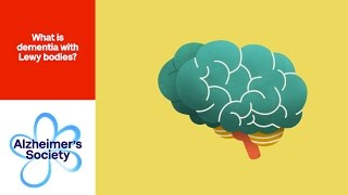 Download What is dementia with Lewy bodies? - Alzheimer's Society (6) Video