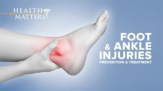 Download Foot and Ankle Injuries - Health Matters Video
