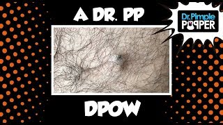 Download The Jungle Is Dark, but Full of Diamonds... A Dr Pimple Popper DPOW Video