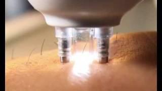 Download definitief ontharing epilator laser Rio Video